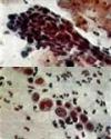 Phiến đồ âm đạo là gì? Tầm soát sớm ung thư sinh dục ở giới nữ và cách xử trí