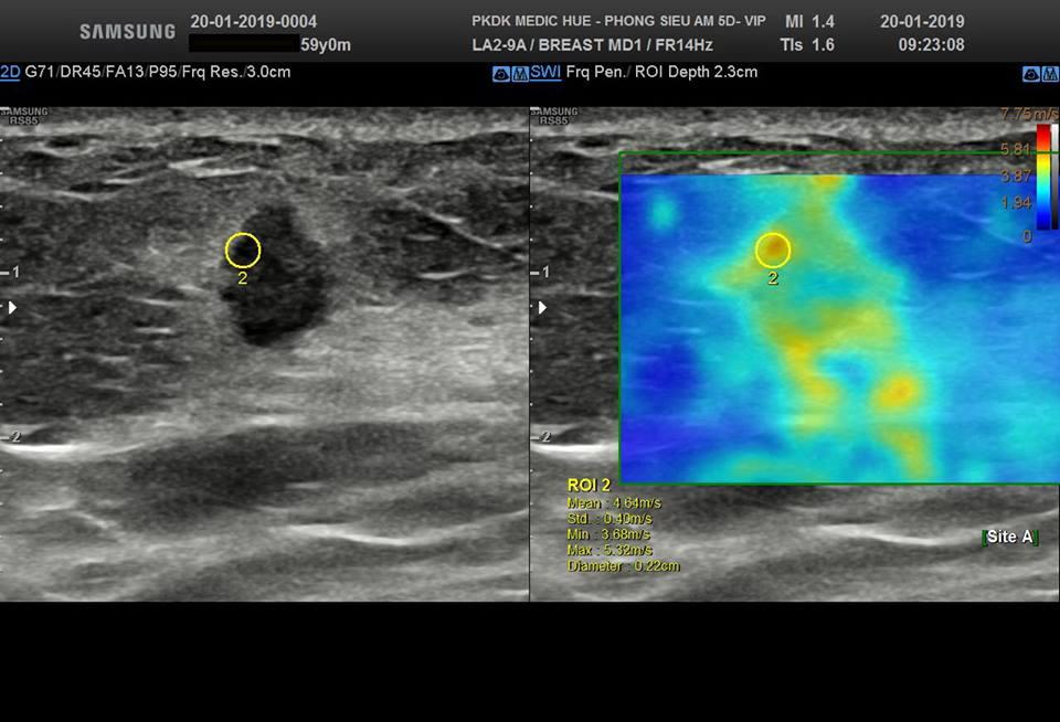Hình siêu âm 2D kết hợp Siêu âm đàn hồi đo độ cứng u cho thấy tổ chức ung thư rất cứng