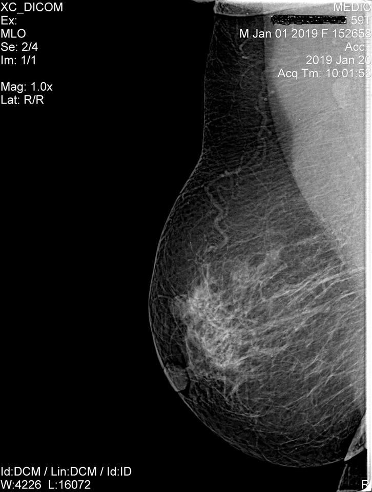 Hình nhũ ảnh khối u